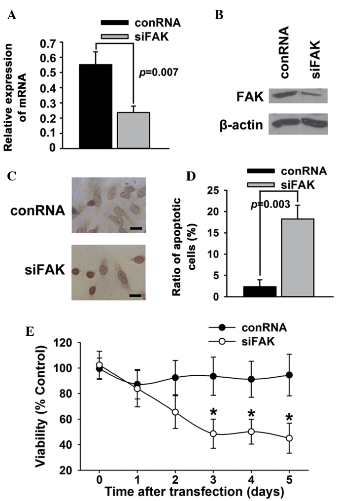 Knockdown of FAK induces apoptosis in T24 bladder cancer cells. T24 bladder cancer cells were transfected with small interfering RNA against FAK (siFAK) or control (conRNA). (A and B) The expression of FAK was examined using western blotting. (C and D) Cell apoptosis was examined using (C) deoxynucleotidyl transferase-mediated dUTP-biotin nick end labeling assay and (D) Annexin V/propidium iodide. (E) Cell survival was examined using an MTT assay. Scale bar, 200 µm. *P