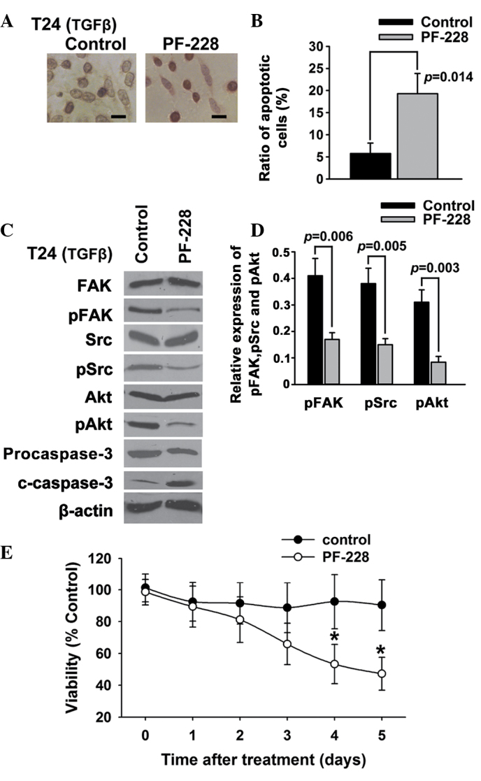 Suppression of FAK phosphorylation induces apoptosis in T24 bladder cancer cells. T24 bladder cancer cells were treated with PF-228 and 5 ng/ml TGFβ. (A and B) Cell apoptosis was examined using (A) deoxynucleotidyl transferase-mediated dUTP-biotin nick end labeling assay and (B) Annexin V/propidium iodide. (C and D) The expression of FAK, pFAK, Src, pSrc, Akt, pAkt, caspase-3 and c-caspase-3 was examined using western blotting. (E) Cell survival was examined using an MTT assay. Scale bar, 200 µm. *P