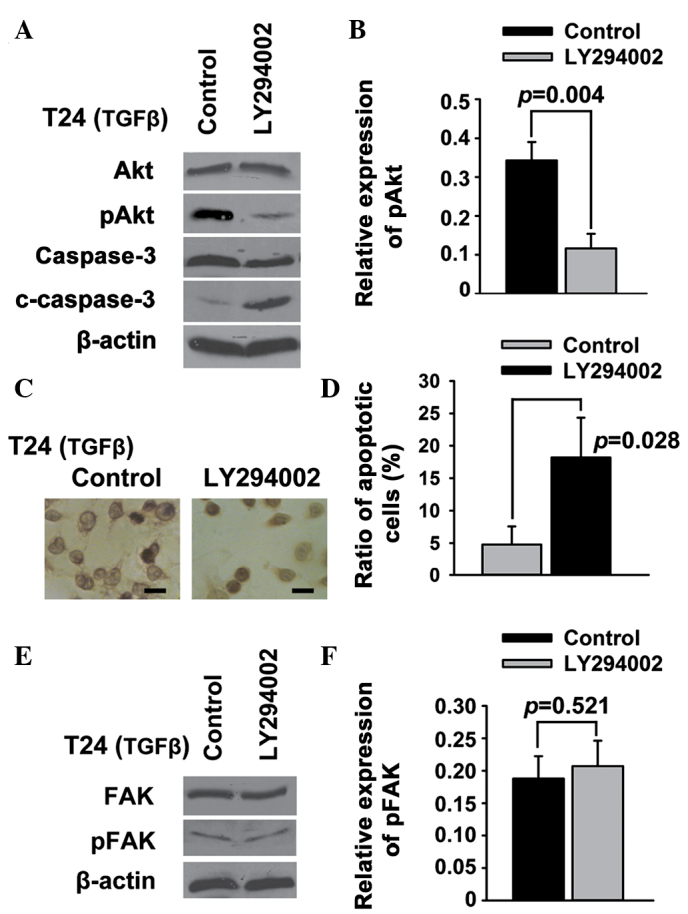 Phosphatidylinositol 3-kinase/Akt acts downstream of FAK signaling to regulate apoptosis in T24 bladder cancer cells. T24 bladder cancer cells were treated with LY294002. (A and B) The expression of Akt, pAkt, caspase-3 and c-caspase-3 was examined using western blotting. (C and D) Cell apoptosis was examined using (C) deoxynucleotidyl transferase-mediated dUTP-biotin nick end labeling assay and (D) Annexin <t>V/propidium</t> iodide. (E and F) The expression of FAK and pFAK was examined using western blotting. Scale bar, 200 µm. FAK, focal adhesion kinase; pFAK, phosphorylated FAK; c-caspase-3, cleaved caspase-3; TGFβ, transforming growth factor-β.
