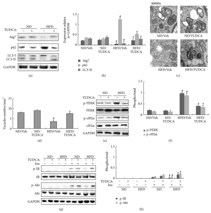 Effects of TUDCA on hepatic autophagic response, ER stress, and insulin signaling in the liver of obese mice. All analyses were performed in mice fed a normal diet (ND) or a high-fat diet (HFD) for 8 weeks and then injected daily with 500 mg/kg of TUDCA or with vehicle (Veh) for 8 weeks. (a) Protein expression of Atg7, p62, and LC3 in liver. (b) The relative protein quantity of Atg7, p62, and LC3 in liver. (c) Quantification of autophagolysosome-like vacuoles per field in the EM images of liver (magnification 40000x). (d) Quantification of autophagolysosome-like vacuoles per field in the EM images of liver. (e) Phosphorylation of PERK and eIF2 α in liver. (f) The relative protein quantity of p-PERK and p-eIF2 α in liver. (g) Phosphorylation of IR and Akt in liver. (h) The relative protein quantity of p-IR and p-Akt in liver. The relative quantity of proteins was analyzed using Quantity One software. A representative blot is shown and the data was expressed as mean ± SEM in each bar graph. ∗ P