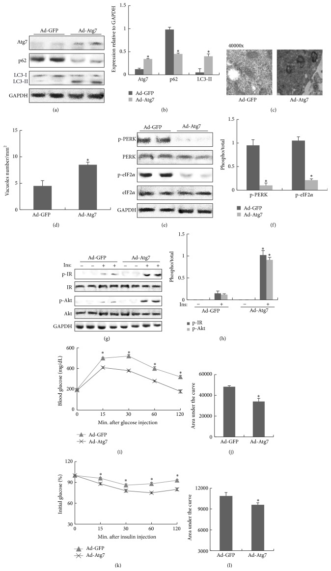 Improvement of ER stress and insulin signaling by the restoration of Atg7 in liver of obese mice. All analyses were performed in mice fed a high-fat diet (HFD) for 8 weeks and then adenovirus carrying Atg7 or GFP was delivered into obese mice via orbital venous plexus at a titer of 3 × 10 11 vp/mice. (a) Protein expression of Atg7, p62, and LC3 in liver. (b) The relative protein quantity of Atg7, p62, and LC3 in liver. (c) Quantification of autophagolysosome-like vacuoles per field in the EM images of liver (magnification 40000x). (d) Quantification of autophagolysosome-like vacuoles per field in the EM images of liver. (e) Phosphorylation of PERK and eIF2 α in liver. (f) The relative protein quantity of p-PERK and p-eIF2 α in liver. (g) Phosphorylation of IR and Akt in liver. (h) The relative protein quantity of p-IR and p-Akt in liver. (i) GTT. (j) Area under the curve by GTT. (k) ITT. (l) Area under the curve by ITT. The relative quantity of proteins was analyzed using Quantity One software. A representative blot is shown and the data was expressed as mean ± SEM in each bar graph. ∗ P