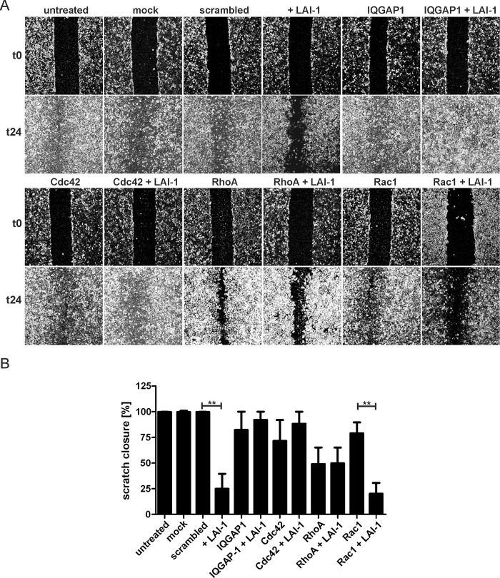 LAI-1-dependent inhibition of cell migration requires IQGAP1 and Cdc42. (A) Confluent cell layers of A549 epithelial cells were treated with siRNA against IQGAP1, Cdc42, RhoA or Rac1 for 2 days. The cells were then treated or not with LAI-1 (10 μM, 1.5 h), scratched and let migrate for 24 h. Prior to imaging (0, 24 h), the detached cells were washed off. (B) The scratch area was quantified using ImageJ software at 7 different positions per condition in triplicate samples. Means and standard deviations of triplicate samples are shown (** p