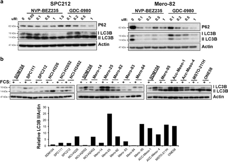 Mesothelioma cells exhibit a high level of autophagy, which is increased upon inhibition of PI3K/mTOR signaling. ( a ) Anti-P62 and -LC3BI/II and -Actin western blots of protein lysates of sensitive cell line SPC212 and resistant cell line Mero-82 treated for 72 h with increasing concentrations of NVP-BEZ235 or GDC-0980 as indicated. ( b ) Anti-LC3BI/II and -Actin western blots of mesothelial cell line SDM104 and MPM cell lines SPC111, SPC212, NCI-H226, NCI-H2052, NCI-H2452, Mero-14, Mero-25, Mero-82, Mero-83, Mero-84, Mero-95, ACC-Meso-1, ACC-Meso-4, MSTO-211H and ONE58 left with serum or serum-starved for 16 h. In the lower panel, protein level quantification of LC3BII normalized against Actin is represented for the cell lines described above with standard culture conditions
