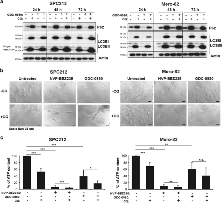 Inhibition of autophagy with CQ sensitizes mesothelioma cell lines to PI3K/mTOR inhibitors. ( a ) <t>Anti-P62,</t> L-C3BI/II and Actin western blots of protein lysates of sensitive cell line SPC212 and resistant cell line Mero-82 treated with 20 μ M CQ, 0.5 μ M GDC-0980 or in combination for 24, 48 and 72 h. ( b ) Light micrographs of SPC212 and Mero-82 treated with 0.2 μ M NVP-BEZ235, 0.5 μ M GDC-0980 alone or in combination with 20 μ M CQ for 96 h. Scale bar represents 25 μ m. ( c ) Quantification of the percentage of ATP content of SPC212 cells and Mero-82 cell treated with 0.2 μ M NVP-BEZ235, 0.5 μ M GDC-0980 alone or in combination with 20 μ M CQ for 96 h. Data are presented as means±S.D. from ≥3 independent experiments. Significance was determined by analysis of variance test (*** P