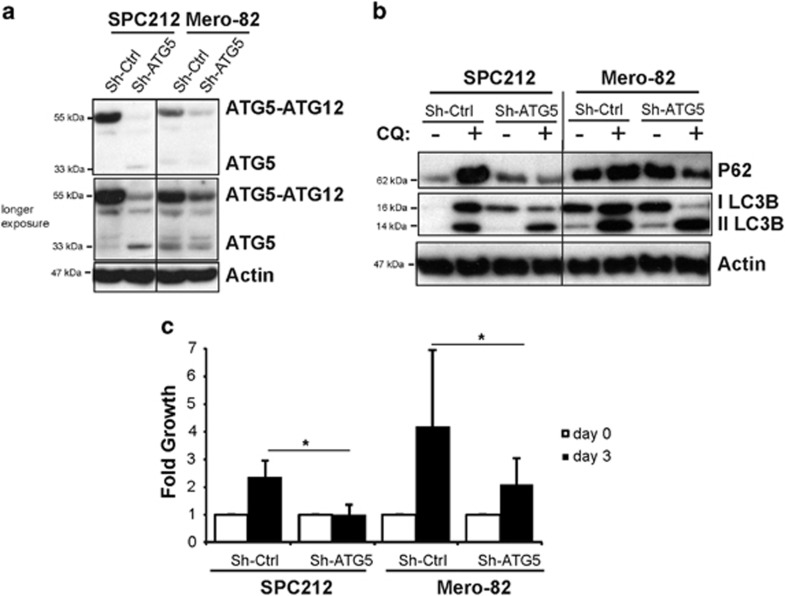 Autophagy is necessary for mesothelioma cell growth. SPC212 and Mero-82 cell lines were stable transduced with virus particles carrying Mir30- Sh-Atg5 or Mir30-Sh-Ctrl. ( a ) Atg5 gene silencing was confirmed by anti-ATG5 western blotting. ( b ) Anti-P62, -LC3BI/II and -Actin of SPC212 and Mero-82 Sh-Atg5 and Sh-Ctrl untreated or treated with 20 μ M CQ for 4 h. ( c ) Fold cell growth of SPC212 and Mero-82 Sh-Atg5 and Sh-Ctrl for 3 days. Data are presented as means±S.D. from three independent experiments. Significance was determined by Mann–Whitney U -test (* P
