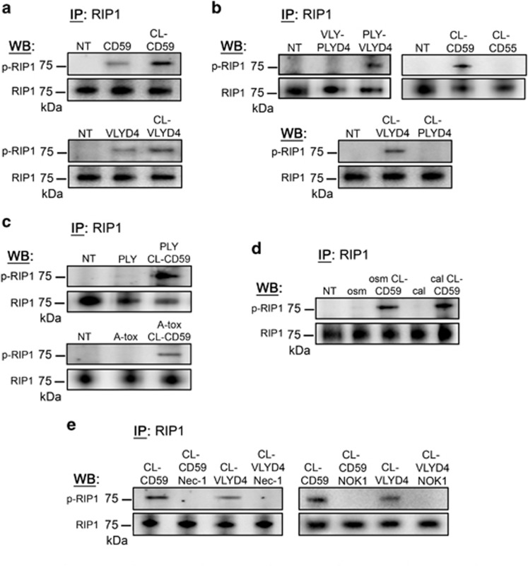 Binding or crosslinking of the hCD59 receptor leads to FasL-dependent phosphorylation of RIP1 in RBCs. ( a ) RIP1 IPs showing p-RIP1 in response to binding of hCD59 by the specific mAb MEM-43 (CD59, 1 μ g/mL) or a His-tagged version of the binding domain of VLY (VLYD4, 100 ng/ml). Further crosslinking of hCD59 with an anti-mouse IgG pAb (CL-CD59) or an anti-His mAb (CL-VLYD4) leads to more robust levels of p-RIP1. ( b ) IPs similar to those in ( a ) showing p-RIP1 specifically in response to hCD59 binding. A version of PLY modified with the binding domain of VLY (PLY-VLYD4) induces p-RIP1 while VLY modified with the binding domain of PLY (VLY-PLYD4) does not. RIP1 is phosphorylated specifically in response to CL-CD59 or CL-VLYD4. Crosslinking of hCD55 (CL-CD55) or PLYD4 (CL-PLYD4) does not result in p-RIP1. The p-RIP1 induced by CL-CD59 is retained in combination with ( c ) the hCD59-independent PFTs, PLY or A-tox, or ( d ) the eryptosis stimuli, hyperosmotic stress (osm) or excess calcium (cal). ( e ) The p-RIP1 induced by CL-CD59 or CL-VLYD4 is prevented by the RIP1 inhibitor nec-1 (50 μ M) or neutralization of FasL (NOK-1, 1 μ g/ml). Treatments for all experiments except for eryptosis were 1 h. Eryptosis stimuli were added to RBCs for a period of 24 h. When nec-1 or mAb NOK-1 was used, RBCs were treated with these inhibitors for 1 h before the addition of stimuli