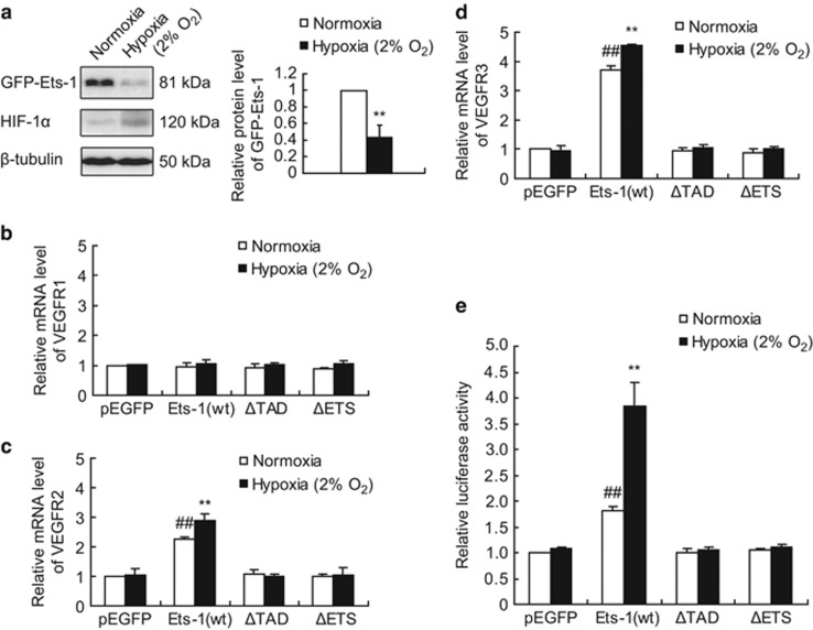 Regulatory effect of Ets-1 on VEGFRs gene transcription and VEGFR3 luciferase reporter activity. ( a ) Relative quantification of GFP-Ets-1 protein. MIN6 cells were transfected with pEGFP-ETS-1 WT . At 24 h following transfection, cells were maintained in normoxic condition or exposed to 2% O 2 for 1 h, followed by western blotting analysis. The left panel shows a representative western blot. The right panel shows the relative quantification of normalized GFP-Ets-1 level to β -tubulin. The average values and standard deviations ( n =3) are shown. **indicates P