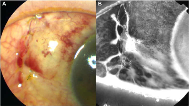 ( A and B ) Photographs obtained 2 days after the initiation of sodium hyaluronate eye drops. Notes: The images show improvement of epithelial failure and resolution of the leakage point. Several microcysts are visible on the bleb surface at the sites where the epithelial failure showed improvement.