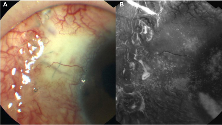 ( A and B ) Photograph taken 1 month after initiation of treatment with sodium hyaluronate eye drops. Note: The microcysts are absent and the bleb surface is smooth.