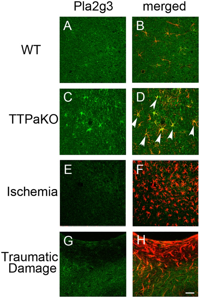 Astrocytic expression of Pla2g3 by chronic oxidative stress. Double immunostaining of Pla2g3 (green) and GFAP (red) in 29 months old wild type mouse (A, B), 29 months old Ttpa -/- mouse (C, D), Ischemic site (E, F) and traumatic injury site (G, H) of cerebral cortex of wild type mice. Arrow heads indicate the strong Pla2g3 expression in astrocytes of Ttpa -/- cortex. Scale bar: 50 μm.