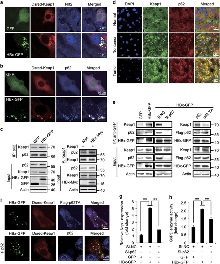 HBx-stimulated p62–Keap1 interaction is required for HBx-induced Nrf2 activation. ( a ) Localization of Dsred-Keap1 and Nrf2 in HBx-GFP-transfected Huh7 cells. ( b ) Colocalization of Dsred-Keap1 and p62 in HBx-GFP-expressing Huh7 cells. ( c ) Co-immunoprecipitation of Keap1 with p62 (left panel) or p62 with Keap1 (right panel) in HBx-expressing cells. ( d ) Immunostaining of p62 and Keap1 in normal liver tissues and HBV-infected non-tumor or tumor tissues. ( e ) Co-immunoprecipitation of HBx-GFP, p62, and Keap1 in HBx-GFP-expressing cells transfected without or with p62 siRNAs, Flag-p62, or Flag-p62T352A (p62TA). ( f ) Localization of Dsred-Keap1 in HBx-GFP-transfected cells with Flag-p62TA expression (upper panel) or p62 RNAi (lower panel). ( g ) Nqo1 mRNA level measured by qRT-PCR in HBx-GFP-expressing cells with or without p62 RNAi. ( h ) G6PD enzyme activity in cells treated as in ( g ). All the statistical data are presented as mean±S.E.M. of triplicate experiments. ** P
