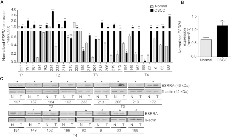 Expression of ESRRA in OSCC samples. ( A ) The qRT-PCR analysis of ESRRA in 25 matched normal oral tissue and OSCC samples. Numbers on the X-axis represent matched normal oral tissue and OSCC samples from different patients. T1, T2, T3 and T4 represent different grades of OSCC samples. ( B ) The comparison of combined qRT-PCR data of the ESRRA transcript level between normal oral tissue and OSCC samples. ( C ) The Western blot analysis of ESRRA in 17 matched normal oral tissue and OSCC samples. OSCC samples showing upregulation of ESRRA as compared to their matched normal oral tissues are marked by ^ . N and T represent normal oral tissue and OSCC samples respectively. β-actin was used as a loading control. *p