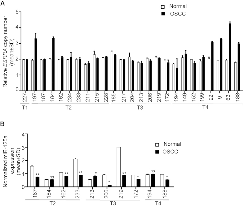 Genomic amplification of ESRRA and expression of miR-125a. ( A ) The TaqMan ® copy number assay to assess the genomic amplification of ESRRA in 25 matched normal peripheral blood and OSCC DNA samples. ( B ) The qRT-PCR analysis of miR-125a in 10 matched normal oral tissue and OSCC samples. *p