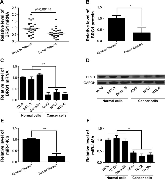 <t>BRG1</t> and miR-148b are expressed at low levels in lung cancer tissues and cell lines. Notes: ( A ) BRG1 mRNA level is lower in lung cancer tissues than that in adjacent normal lung tissues. ( B ) The expression level of BRG1 protein is decreased in lung cancer tissues compared to that in adjacent normal lung tissues. ( C ) BRG1 mRNA levels in lung cancer cell lines A549, H522, and H1299 are lower than those in lung cell lines WI38, MRC5, and Beas-2B. ( D ) BRG1 protein levels in lung cancer cell lines A549, H522, and H1299 are lower than those in lung cell lines WI38, MRC5, and Beas-2B. ( E and F ) miR-148b expression level is significantly decreased in lung cancer tissues and cells. * P