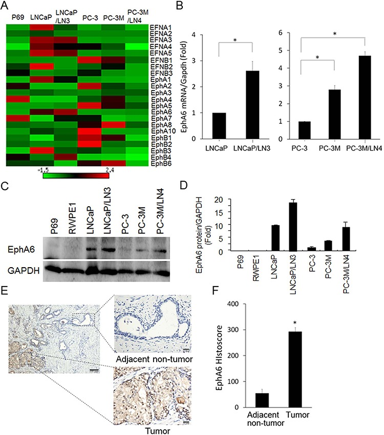 EphA6 mRNA and protein expression is up-regulated in CaP lymph node metastatic cell lines and CaP tumor tissues A. The mRNA expression of all currently known members of human Eph receptor and ephrins was detected and quantitated by qRT-PCR in CaP cell lines LNCaP, PC-3, PC-3M and their derivative lymph node metastatic lines LNCaP/LN3 and PC-3M/LN4. Immortalized prostate epithelial cell line P69 was used as a control cell line. GAPDH was used as a house keeping gene control. The heat-map depicts the mRNA expression of Eph and ephrin family members. B. The expression of EphA6 mRNA was also shown in bar graphs for clearer presentation. * P
