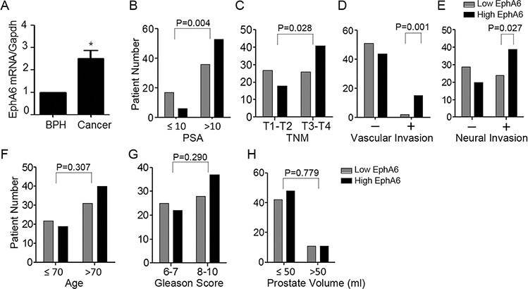 EphA6 expression is positively correlated with vascular invasion and neural invasion of CaP A. The expression of EphA6 mRNA in a cohort of 112 CaP tumor tissue samples and 58 benign prostate tissue samples from BPH patients was assessed by <t>qRT-PCR.</t> B-H. Correlation of EphA6 expression with clinical and histological parameters in prostate cancer patients: PSA (B), TNM (C), vascular invasion (D), neural invasion (E), age (F), Gleason score (G), and prostate volume (H)