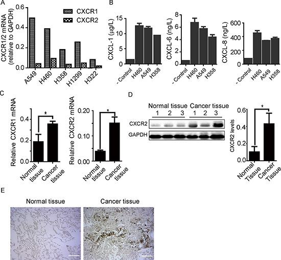 Expression of CXCR1 and CXCR2 receptors in human lung cancer tissue and cell lines A. CXCR1 and CXCR2 mRNA was detected in a panel of non-small cell lung cancer cell lines as indicated. All five cell lines show CXCR1 and CXCR2 mRNA expression. B. CXCL1, 6, and 8 chemokines were detected from conditioned media of H460, A549, and H358 through ELISA. Data are summarized from 3 independent experiments; error bars represent SEM (standard error of the mean). C. CXCR1 and CXCR2 mRNA expression was quantified through PCR in human lung cancer tissue comparing to adjacent non-cancerous tissue from same patients ( n = 8). CXCR1 and CXCR2 mRNA was expressed more in cancer tissue than non-cancerous counterpart. Results represent mean ± SEM (*, p