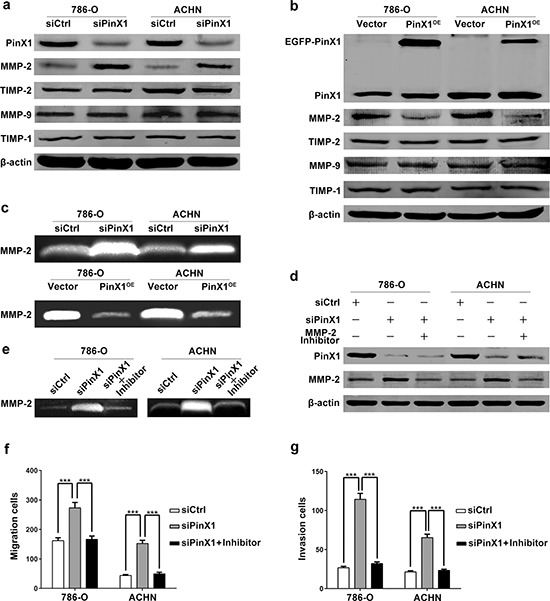 PinX1 inhibits migration and invasion of ccRCC cells by suppressing MMP-2 expression and activity a. Western blotting of PinX1, MMP-2, MMP-9, TIMP-1 and TIMP-2 from ccRCC cells transfected with the PinX1 siRNA or control siRNA. MMP-2 expression was up-regulated independent of TIMP-2 in PinX1 knockdown ccRCC cells. b. Western blotting of PinX1, MMP-2, MMP-9, TIMP-1 and TIMP-2 from ccRCC cells transfected with the pEGFP-C3-PinX1 plasmid or vector control. MMP-2 expression was down-regulated independent of TIMP-2 in PinX1 overexpression ccRCC cells. c. top panel, Gelatin zymography analysis of the enzyme activity of MMP-2 in PinX1 knockdown and control group for both 786-O and ACHN cell lines (gels were incubated for 10 h for 786-O cells and 48 h for ACHN cells). Bottom panel, Gelatin zymography analysis of the enzyme activity of MMP-2 in PinX1 overexpression and control group for both 786-O and ACHN cell lines (gels were incubated for 16 h for 786-O cells and 96 h for ACHN cells). The MMP-2 enzyme activity was significantly enhanced after PinX1 overexpressing in ccRCC cells, conspicuously suppressed after PinX1 knockdown. d. Western blotting of PinX1 and MMP-2 from ccRCC cells transfected with the control siRNA, PinX1 siRNA or co-treated with MMP-2 selective inhibitor I (10 μM). The enhancement of MMP-2 expression regulated by PinX1 knockdown in ccRCC cells was blocked by MMP-2 inhibitor I. e. Gelatin zymography analysis of the enzyme activity of MMP-2 in ccRCC cells transfected with the PinX1 siRNA or co-treated with MMP-2 selective inhibitor I (10 μM). The enhancement of MMP-2 activity regulated by PinX1 knockdown in ccRCC cells was blocked by MMP-2 inhibitor. f. and g. The enhancement of migration and invasion regulated by PinX1 knockdown in ccRCC cells was blocked by MMP-2 inhibitor I. All experiments were carried out in triplicate. Histograms represent means ± SD. ***, P