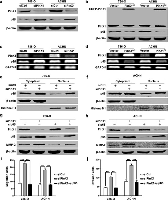 PinX1 inhibits migration and invasion of ccRCC cells by suppressing MMP-2 expression via NF-κB-dependent transcription a. Western blotting of PinX1 and p65 from ccRCC cells transfected with the PinX1 siRNA or control siRNA. p65 expression was up-regulated in PinX1 knockdown ccRCC cells. b. Western blotting of PinX1 and p65 from ccRCC cells transfected with the pEGFP-C3-PinX1 plasmid or vector control. p65 expression was down-regulated in PinX1 overexpression ccRCC cells. c. RT-PCR determined mRNA levels of PinX1 and p65 in ccRCC cells transfected with PinX1 siRNA or control siRNA. The mRNA level of p65 was increased in PinX1 knockdown ccRCC cells. d. RT-PCR determined mRNA levels of PinX1 and p65 in ccRCC cells transfected with pEGFP-C3-PinX1 plasmid or vector control. The mRNA level of p65 was decreased in PinX1 overexpression ccRCC cells. e and f. Western blotting determined cellular distribution of p65 in 786-O and ACHN cells transfected with control siRNA and PinX1 siRNA. Inhibition of PinX1 significantly increased the nuclear accumulation of p65. g. and h. Western blotting of PinX1, p65 and MMP-2 from ccRCC cells transfected with the control siRNA, PinX1 siRNA, p65 siRNA or co-treated with PinX1 siRNA and p65 siRNA. MMP-2 expression was inhibited by p65 siRNA as well as p65 expression. The enhancement of MMP-2 expression regulated by PinX1 knockdown as well as p65 in ccRCC cells was abolished by p65 siRNA. i. and j. The enhancement of migration and invasion regulated by PinX1 knockdown in ccRCC cells was abolished by p65 siRNA. All experiments were carried out in triplicate. Histograms represent means ± SD. ***, P