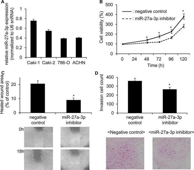 miR-27a-3p inhibitor significantly reduced the cell growth, migration and invasion ability in Caki 1 cells A. Expression of miR-27a-3p in ccRCC cell lines was examined by quantitative real-time PCR. B. The proliferation of Caki-1 cells transfected with the miR-27a-3p inhibitor or negative control miRNA inhibitor for 48, 72, 96 and 120 h were examined by MTS assay. Values are means ± S.D. of 6 independent experiments. * p
