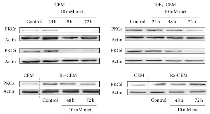Metformin induces changes in enzymes controlling energy metabolism. Western blots of PKC δ and PKC ε in CEM, 10E 1 -CEM, and R5-CEM cells exposed to 10 mM metformin for the times indicated. Representative results of three independent assays performed are shown.