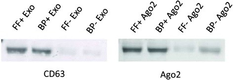 Specificity of isolation of exosomes and Ago2 protein complex from follicular fluid and blood plasma. Exosome and Ago2 proteins were isolated from organic-phenol fraction during total RNA isolation using miRNeasy kit and resolved in 8M urea. Protein concentrations were quantified using Bradford assay and total of twenty microgram protein from each group were separated in 12 % SDS-PAGE, transferred nitrocellulose membrane and incubated with specific antibody (CD63 and Ago2). Followed by HRP-conjugated secondary antibody and detected using chemiluminescent substrate. Western-blot results indicate the specificity of exosome and Ago2 protein isolation from follicular fluid (FF) and blood plasma (BP) as indicated in the corresponding figures