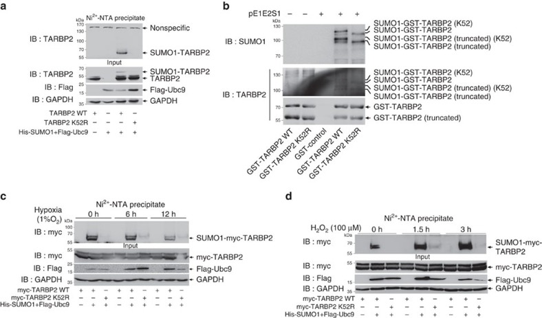 <t>TARBP2</t> is mainly SUMOylated at K52. ( a ) Mutation K52R abolishes TARBP2 SUMOylation in 293T cells. pLPC-TARBP2-WT or -K52R with His-SUMO1/Flag-Ubc9 was co-transfected into 293T cells. Forty-eight hours after transfection, cells were lysed and Ni 2+ -NTA pull down was performed to detect TARBP2 SUMOylation. ( b ) Mutation K52R impairs TARBP2 SUMOylation in an E. coli system. Plasmid pGEX4T1-TARBP2-WT or -K52R with pE1E2S1 plasmid were co-transfected into E. coli <t>BL21</t> (DE3). Western blot analysis was conducted with anti-SUMO1 antibody after GST pull down, and the same membrane was also detected with anti-TARBP2 antibody after stripping. ( c ) Hypoxia downregulates SUMOylation of TARBP2. 293T cells transfected with indicated plasmids were cultured under 1% of oxygen condition (hypoxia) for indicated time before being harvested. Ni 2+ -NTA resin pull down was performed to detect SUMOylated TARBP2. ( d ) Hydrogen peroxide (H 2 O 2 ) upregulates SUMOylation of TARBP2. 293T cells transfected with indicated plasmids were treated with 100 μM of H 2 O 2 for indicated time before being harvested. Ni 2+ -NTA resin pull down was performed to detect SUMOylated TARBP2. For full scans of western blots ( a – d ), see Supplementary Fig. 8 .