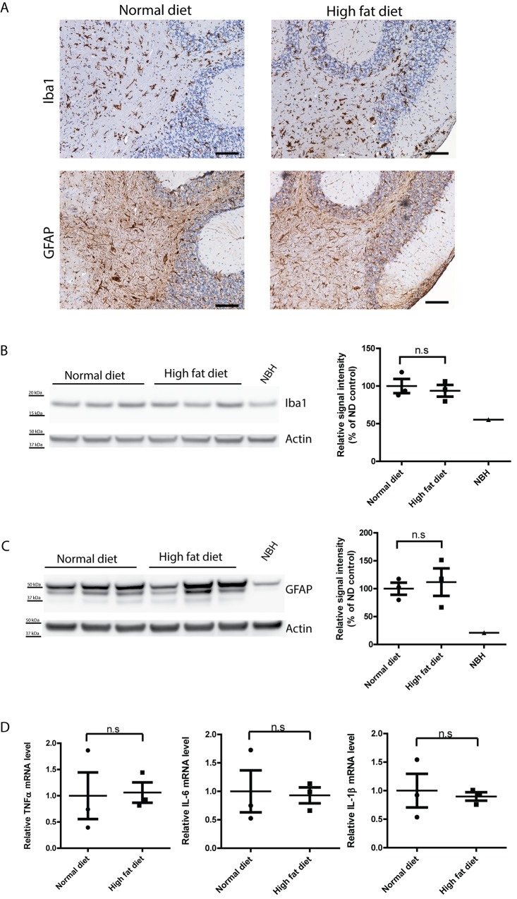 Similar level of astrogliosis and microglial activation in terminally sick HFD- and ND-fed tg a 20 mice. ( A ) Representative immunohistochemical staining for GFAP and Iba1 in brains of terminally sick HFD-fed and ND-fed tg a 20 mice. There was no detectable difference between the two groups in astrogliosis or microglial activation. Scale bar = 100μm. ( B ) Left: Western blot for Iba1 in terminally sick mouse brains. Right: densitometric quantification of the Western blot revealed no significant difference of Iba1 levels between HFD-fed and ND-fed tg a 20 mouse brains (n = 3; n.s.: p > 0.05). ( C ) Left: Western blot for GFAP in terminally sick mouse brains. Right: densitometric quantification of the Western blot showed no significant difference of GFAP levels between HFD-fed and ND-fed tg a 20 mouse brains (n = 3; n.s.: p > 0.05). ( D ) qRT-PCR of cytokines TNFα, IL-6 and IL-1β expression revealed similar expression levels of these cytokines in terminally sick HFD-fed and ND-fed mouse brains (n = 3; n.s.: p > 0.05).