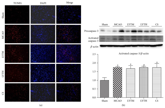 LYT (Luoyutong) reduces neuronal apoptosis and decreases the level of caspase-3. (a) Neuronal apoptosis in the ipsilateral cortex was detected by terminal deoxynucleotidyl transferase dUTP nick end labeling and 4′ 6-diamidino-2-phenylindole double staining 14 days after ischemic reperfusion. (b) Expression of activated caspase-3 was detected by Western blot 14 days after ischemic reperfusion. n = 3. ∗ P