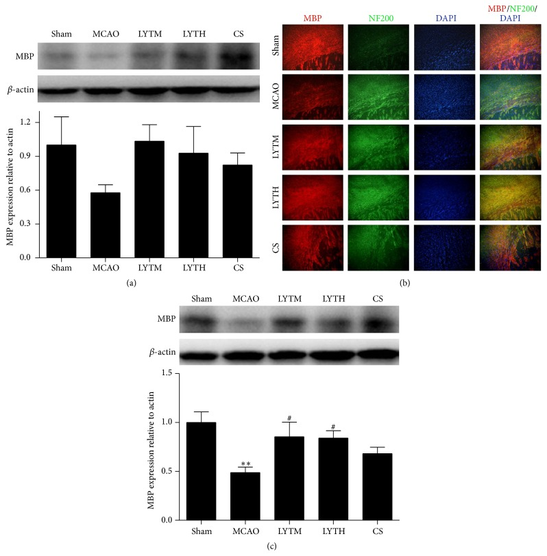 LYT (Luoyutong) induced upregulation of MBP (myelin basic protein) expression after MCAO (middle cerebral artery occlusion). Western blot detection and quantitative analysis of (a) MBP expression 3 days after MCAO and (c) MBP expression 14 days after MCAO. (b) Representative immunofluorescence images showing colocalization of MBP (red) and NF200 (neurofilament 200) (green) in the cortex. Blue DAPI staining indicates the nuclei. n = 3. ∗∗ P