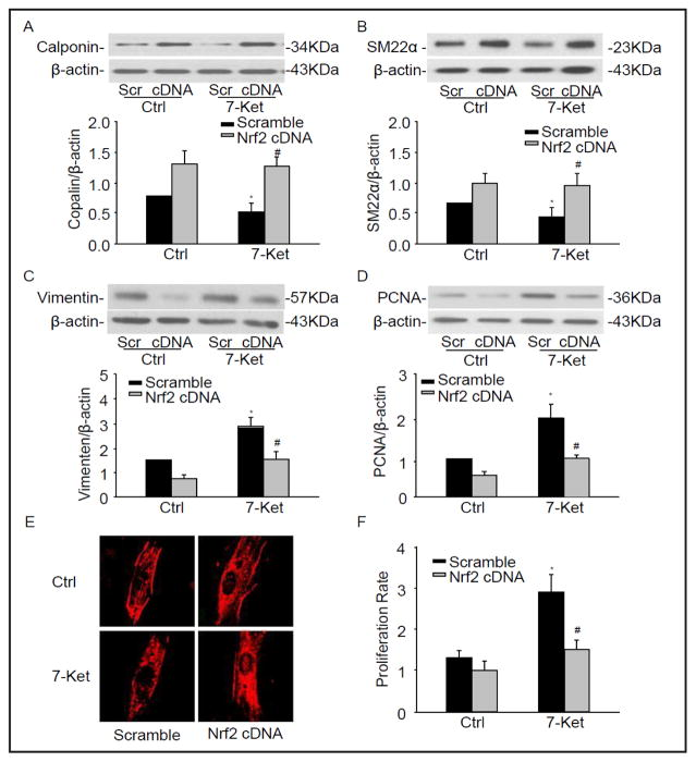 Nrf2 deficiency changed the phenotypic marker in CAMs. CD38 −/− CAMs were transfected with Nrf2 cDNA plasmids under the treatment with 7-Ket for 24 hours. Representative Western blot gel documents and summarized data showing the protein expression of calponin (A), SM22α (B), Vimentin (C), and PCNA (D). (E) Typical representative fluorescent images for α-SMA staining. (F) Summarized data showing the proliferation rate of CAMs in CD38 −/− transfected with Nrf2 cDNA. * P