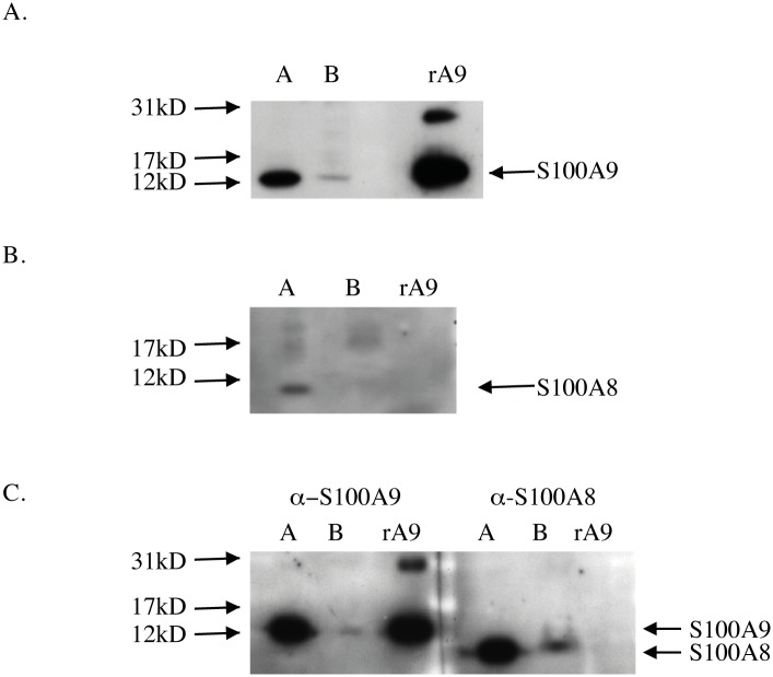 Western blot analysis under reducing conditions (10% SDS) of plasma membrane fractions prepared from cell surface biotinylated THP-1 cells and human monocytes. (A) S100A9 in the biotinylated plasma membrane fraction of THP-1 cells: non-biotinylated membrane fraction (lane a) and biotinylated cell surface fraction (lane b). (B) S100A8 expression in biotinylated THP-1 cells (same sample fractions as in (A). (C) Expression of S100A9 (left) and S100A8 (right) in the non-biotinylated membrane fraction (lane a) and biotinylated cell surface fraction (lane b) of human monocytes. Antibodies used were; α-S100A9 (NOVUS clone 1C10) and α-S100A8 (BMA; T1030; clone 8-5C2). 4 ng recombinant hS100A9 (rA9) was loaded.