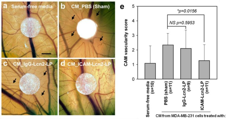 Conditioned media from MDA-MB-231 cells treated with ICAM-Lcn2-LP inhibits in vivo angiogenesis in the CAM assay. Representative micrographs are shown for CAMs treated with serum-free media (a), or CM from MDA-MB-231 cells treated with PBS (sham) (b), CM from MDA-MB-231 cells treated with IgG-Lcn2-LP (c), and CM from MDA-MB-231 cells treated with ICAM-Lcn2-LP (d). Scale bar is 1 mm, and arrows point to areas of newly formed blood vessels. CAM vascularity for each experimental group was scored on a scale of 0-4 (e). (NS: no significant difference,* p