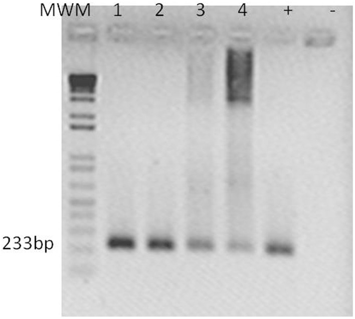 Cmm detection in S. peruvianum tissues by PCR . An amplicon of 233 bp was obtained using Cel- A primers por Cmm detection at 10 and 20 dpi. Lanes show PCR products shown with template of: (1) leaf tissue of SCE I-silenced S. peruvianum at 10 dpi, (2) leaf tissue of SCE I-silenced S. peruvianum at 20 dpi, (3) leaf tissue of empty vector treated S. peruvianum at 10 dpi, (4) leaf tissue of empty vector treated S. peruvianum at 20 dpi. Plasmid of pGEM T-Easy with Cel-A fragment. (-) Negative control. 100 ng of DNA were taken for each reaction.