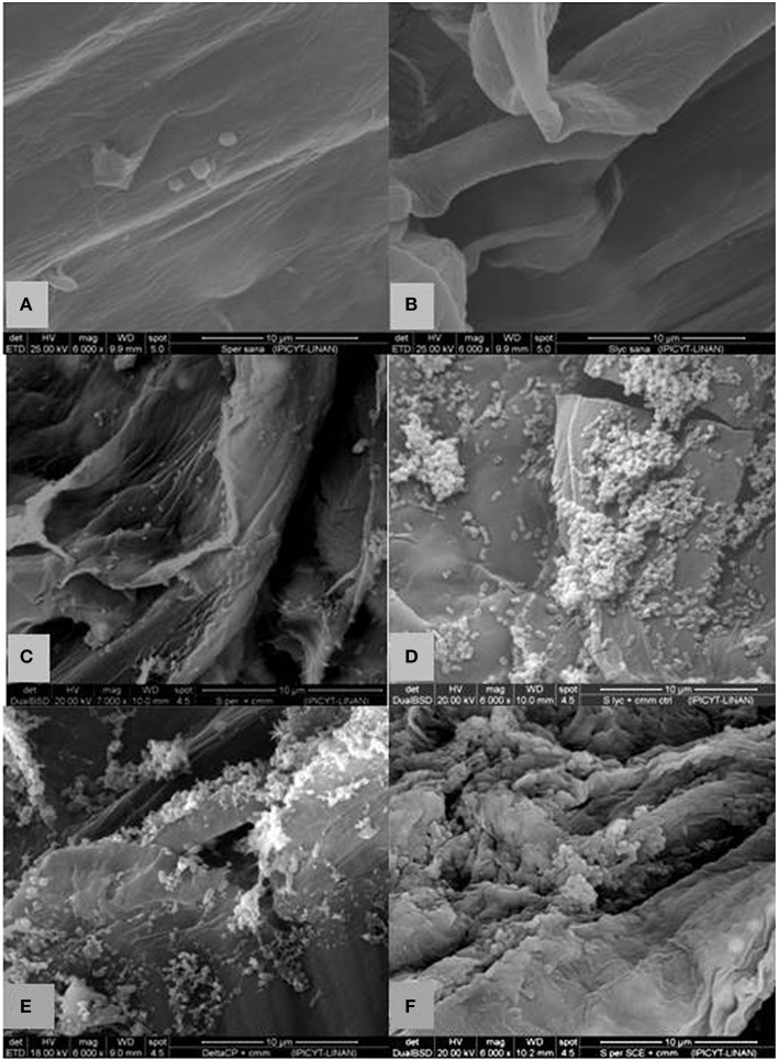 Scanning electron microscopy of longitudinal cut of a stem of non-treated, empty vector and SCE I-silenced Solanum plants with and without Cmm challenge . (A) S. peruvianum without inoculation of Cmm showing no bacteria or tissue damage (B) S. lycopersicum without inoculation of Cmm showing no bacteria or tissue damage (C) non-VIGS treated S. peruvianum at 10 dpi with Cmm showing some bacterial but limited parenchymal tissue damage. (D) S. lycopersicum at 10 dpi with Cmm revealing more bacterial structures with greater parenchymal tissue damage. (E) empty-vector treated S. peruvianum at 10 dpi with Cmm with some bacterial structures and limited parenchymal tissue damage. (F) SCE I-silenced S. peruvianum at 10 dpi with Cmm revealing considerable bacterial structures and parenchymal tissue damage. Magnification 6000x, scale bar ~10 μm.