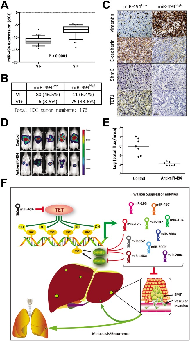miR-494 is associated with HCC EMT and vascular invasion in human HCC tumors. (A) Analysis of miR-494 expression of 91 VI − and 81 VI + HCC tumors by qRT-PCR. (B) Vascular invasion is associated with higher miR-494 levels in human HCC tumors. Human HCC tumor samples were classified into two groups according to low and high miR-494 expression levels by median division of qRT-PCR results. (C) Representative Images of immunohistochemical staining for vimentin, E-cadherin, 5hmC, and TET1 in HCC tumors with low (miR-494 low ) and high miR-494 (miR-494 high ) expression levels. Scale bars, 100 μm. (D) Bioluminescent images showed a suppression of tumor formation in nude mice implanted with miR-494 knockdown SNU449-Luc cells (n = 5 for each group). (E) Suppression of lung metastasis in nude mice implanted with miR-494 knockdown SNU449-Luc cells was monitored by ex vivo bioluminescent imaging. Luciferase activity of lung metastasis was quantified for anti-miR-494 or anti-miR control group (n = 7 for each group). (F) Schematic presentation of miR-494 action in HCC EMT and vascular invasion. miR-494 suppresses multiple invasion-suppressor miRNAs though epigenetic repression by targeting TET methylcytosine dioxygenase in invasive human hepatocarcinoma tumors.