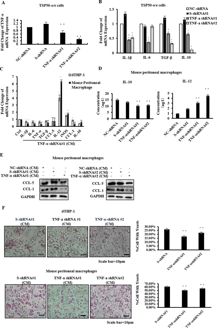 TNF-α induced by TSP50 is crucial for affecting macrophage activities. (A-B) TSP50-o/e cells were transfected with the indicated shRNA plasmids. After 24h, the mRNA level of TNF-α (A) or cytokines (B) in these cells were analyzed by real-time PCR. (C) dTHP-1 cells or mouse peritoneal macrophages were cultured with CM from TNF-α knock-down TSP50-o/e cells or control cells for 24h. The mRNA expression of cytokines and macrophage phenotypic markers were determined by real-time PCR. (D) Mouse peritoneal macrophages were cultured with CM from TNF-α knock-down TSP50-o/e cells or control cells for 24h. CM from macrophages was collected and subjected to ELISA to detect the secretion of cytokines. (E) Mouse macrophages were cultured with CM from TNF-α knock-down TSP50-o/e cells or control cells for 24h. The macrophages were collected and lysed, and the protein level of macrophage phenotype markers were analyzed by western blotting. (F) Phagocytosis capacities of dTHP-1 cells (up) or mouse peritoneal macrophages (down) were measured after treatment with CM from TNF-α knock-down TSP50-o/e cells or control cells. GAPDH was used as the internal control to check the efficiency of cDNA synthesis and PCR amplification. Data are shown as mean ± SD of three replicates in three independent experiments.* p