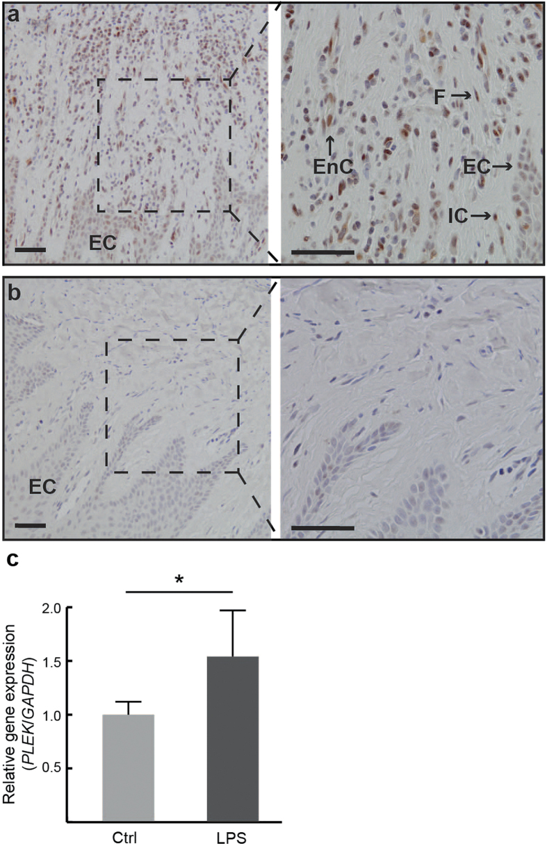 Expression of PLEK in gingival biopsies and gingival fibroblasts. ( a ) Representative PLEK staining of gingival tissue sections from a patient with periodontitis and ( b ) a healthy control subject. EC = epithelial cells, F = fibroblasts, EnC = endothelial cells, IC = immune cells. Scale bars = 50 μm. ( c ) Relative gene expression of PLEK in fibroblast cells stimulated with lipopolysaccharide (LPS) compared to control cells treated with medium only (Ctrl), expressed as fold change normalized to the expression of GAPDH . Results shown are representative of three experiments performed in gingival fibroblasts obtained from three individuals and data presented as mean ± S.D. from triplicates (* P