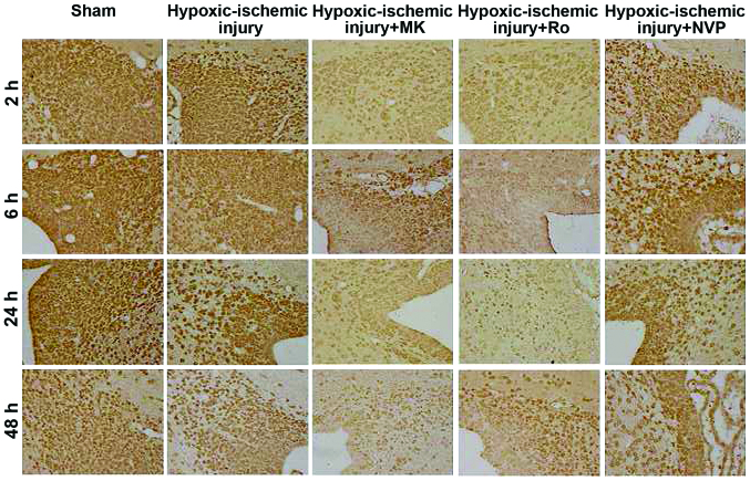 Immunohistochemical staining for <t>DCX</t> in the subventricular zone at different time points (2, 6, 24 and 48 h) after hypoxic-ischemic injury in the control, sham and hypoxic-ischemia groups. DCX, <t>Nestin</t> and doublecortin; MK, MK-801; Ro, Ro25-6981; NVP, NVP-AAM077.