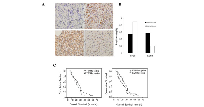 Expressions of Tat-interacting protein (TIP)30 and epidermal growth factor receptor <t>(EGFR)</t> in glioma and normal brain tissue samples. (A) (a) Negative expression of <t>TIP30</t> in glioma tissue samples. (b) Positive expression of TIP30 in normal tissue samples. (c) Strong positive expression of EGFR in glioma tissue samples. (d) Weak positive expression of epidermal growth factor receptor (EGFR) in normal brain tissue samples. (Magnification, ×400) (B) Protein expression of TIP30 and EGFR in glioma and normal brain tissue samples (P