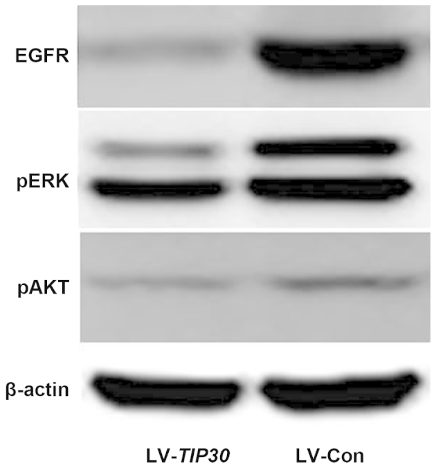 U87 glioma cell infection with lentivirus (LV)-Tat-interacting protein (TIP)30 induced significant downregulation of epidermal growth factor receptor (EGFR)/phosphorylated (p) extracellular signal-regulated kinases (ERK)/pAKT. The expression levels of EGFR, pERK, and pAKT were examined by western blotting in LV-TIP30 and LV-control (Con) U87 cells.