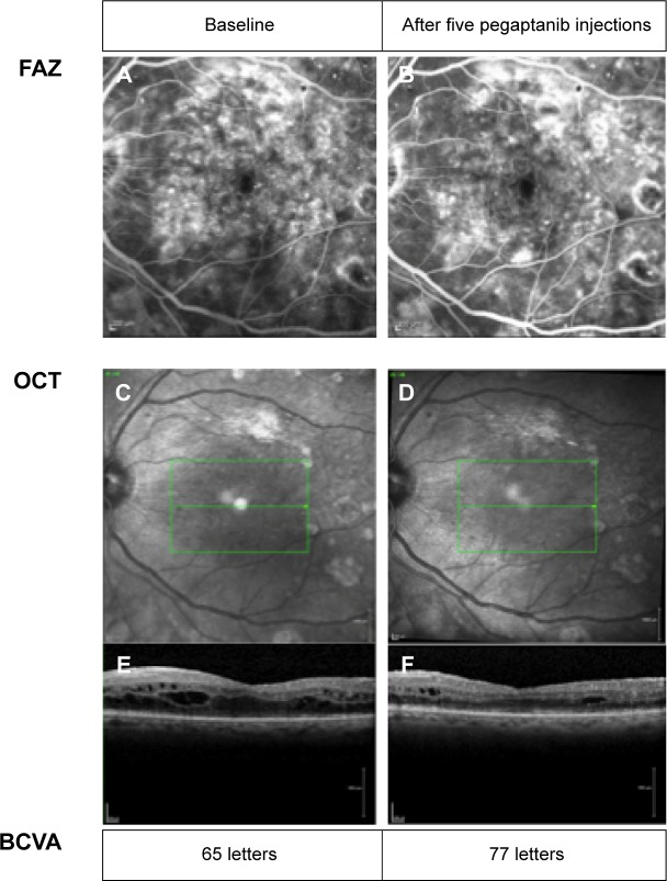 Example of a patient who benefitted from treatment. Notes: Note the reduction in macular edema on OCT with minimal change in the size of the <t>FAZ.</t> ( A ) FAZ at baseline. ( B ) FAZ after five pegaptanib injections. ( C and E ) OCT scan at baseline. ( D and F ) OCT scan after 5 pegaptanib injections. Abbreviations: FAZ, foveal avascular zone; OCT, optical coherence tomography; <t>BCVA,</t> best corrected visual acuity.
