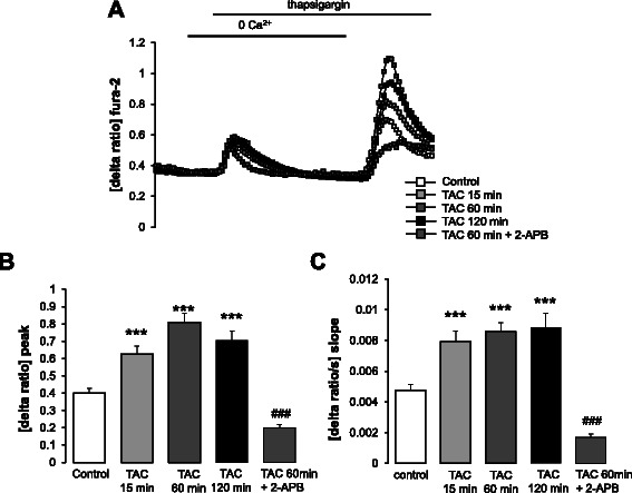 Effect of mAR activation on intracellular Ca 2+ release and store operated Ca 2+ entry (SOCE) in MCF-7 cells. a Representative tracings of fura-2 fluorescence-ratio in fluorescence spectrometry before, during and after Ca 2+ depletion with subsequent addition of thapsigargin (1 μM) in MCF-7 cells without (control, open squares) and with (grey and black squares) treatment with testosterone-albumin-conjugates (TAC, 100 nM) for 15–120 min in the absence and presence of the Orai-1 inhibitor 2-APB (50 μM). b , c Arithmetic means (± SEM, n = 3–5, each experiment 10–30 cells) of slope ( b ) and peak ( c ) increase of fura-2-fluorescence-ratio following re-addition of extracellular Ca 2+ in MCF-7 cells without (control, white bars) and with (grey and black bars) treatment with TAC (100 nM) for 15–120 min in the absence and presence of the Orai-1 inhibitor 2-APB (50 μM). ***( p