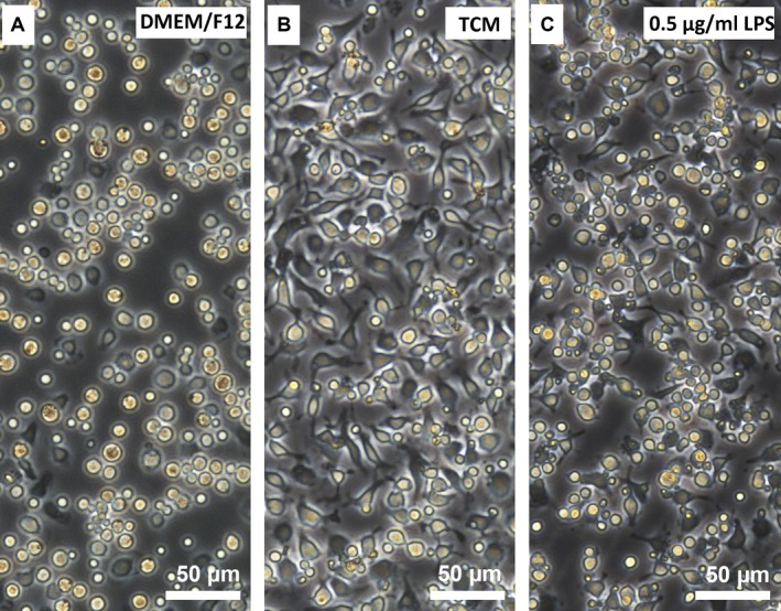 Morphological alterations in mouse pMAC s following exposure to TCM , <t>DMEM</t> <t>/F12,</t> or LPS for 48 hrs. ( A ) DMEM /F12‐treated pMAC s showed no signs of activation: they had normal morphology with a regular round shape, abundant clear cytoplasm and ample intercellular spaces. ( B ) TCM ‐treated pMAC s had a relatively moderate activation/immune response: they exhibited obvious morphological changes with a polyhedron shape, large and sufficient pseudopodia, abundant granules in the cytoplasm, narrow intercellular spaces and densely populated features. ( C ) LPS (0.5 μg/ml)‐treated pMAC s showed excessive activation: they presented with irregular, doublet or multiple shapes and ultimately underwent cell death, which was characterized by cell membrane blebbing, cell body atrophy and nuclear condensation or fragmentation.