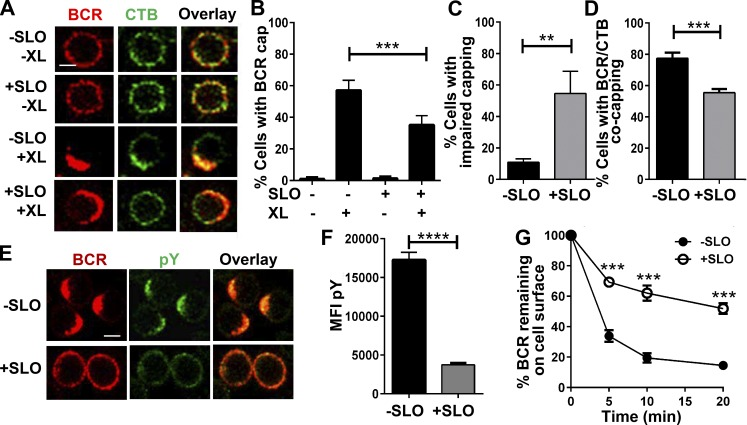 SLO injury of the PM reduces BCR activation and internalization. (A–D) BCR–CTB coclustering in the presence or absence of SLO. B cells were incubated at 4°C with Cy3-Fab (5 µg/ml; −XL) or AF546-F(ab′) 2 anti–mouse <t>IgM+IgG</t> (5 µg/ml; +XL) plus <t>AF488-CTB</t> (3 µg/ml) and warmed to 37°C for 5 min with or without SLO, followed by fixation and confocal microscopy. (A) Representative images. Bar, 2.5 µm. (B) Percentages (± SD) of all B cells exhibiting polarized BCR clusters (capping). (C) Percentages of B cells with polarized BCR clusters showing impaired BCR caps. (D) Percentages of B cells with polarized BCR clusters showing BCR–CTB coclustering. Data in B–D were generated by visual inspection of images from four independent experiments. (E and F) Tyrosine phosphorylation (pY) of B cells treated with or without SLO. B cells were incubated at 4°C with SLO and AF546-F(ab′) 2 -goat anti–mouse IgM+IgG (5 µg/ml) and warmed to 37°C for 5 min, followed by fixation, permeabilization, and staining for phosphotyrosine (pY) and analysis of confocal microscopy (E) and flow cytometry (F). Shown are representative images and the mean MFI (± SD) of pY from three independent experiments. Bar, 2.5 µm. (G) Effect of SLO treatment on BCR internalization. B cells were incubated at 4°C with biotinylated F(ab′) 2 anti–mouse IgM+IgG (10 µg/ml), followed by 37°C incubation with or without SLO for the indicated times. Cells were then labeled with PE-streptavidin at 4°C and analyzed by flow cytometry to determine the percentage of surface-labeled BCRs remaining on the cell surface. Shown is the mean percentage (± SD) from three independent experiments. **, P ≤ 0.01; ***, P ≤ 0.001; ****, P