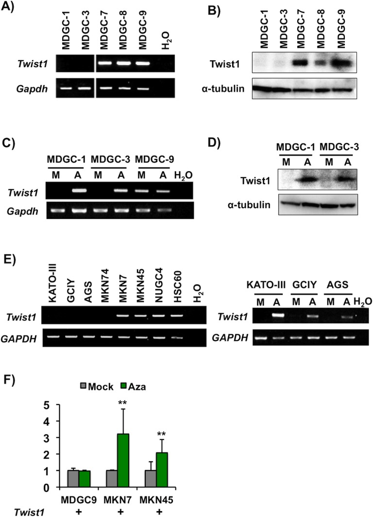 Twist1 expression in murine and human GC cell lines. (A) <t>RT-PCR</t> analysis of Twist1 mRNA expression in five mouse GC cell lines MDGC-1, MDGC-3, MDGC-7, MDGC-8 and MDGC-9) from DCKO mice. Mouse Gapdh was used as an internal control. (B) Expression of Twist1 protein in MDGC cells by Western blot. α-tubulin was used as an internal control. (C and D) Effects of a <t>DNA</t> demethylation agent in MDGC cells. After treatment with 5-aza-dC, Twist1 expression was up-regulated at the mRNA (C) and protein levels (D) in Twist1 expression-negative MDGC-1 and MDGC-3 cells, but not in Twist1 expression-positive MDGC-9 cells. M, mock; A, 5-aza-dC. (E) RT-PCR analysis of Twist1 mRNA expression in human GC cell lines (KATO-III, GCIY, AGS, MKN74, MKN7, MKN45, NUGC4 and HSC60) (left). Twist1 expression was up-regulated at the mRNA level in KATO-III and GCIY cells after 5-aza-dC treatment (right). Human GAPDH was used as an internal control. (F) qRT-PCR analysis of Twist1 mRNA expression in MDGC-9, MKN7 and MKN45 cells with and without 5-aza-dC treatment (**P