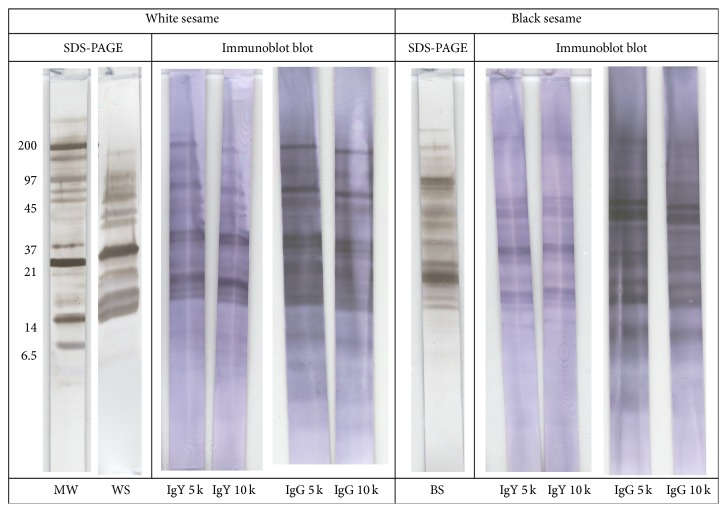 SDS-PAGE and immunoblot of sesame. MW: molecular weight markers (indicated left in kDa), WS: white sesame extract, and BS: black sesame extract. Blots developed with egg yolk (IgY) or sheep <t>(IgG)</t> antibodies, diluted 5,000-fold (5 k) or 10,000-fold (10 k).
