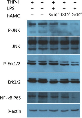 hAMCs inhibit the phosphorylation of MAPKs and activation of NF-κB in LPS-stimulated THP-1 cells. PMA-induced THP-1 cells were treated with LPS (10 μg/mL) with or without hAMCs (5 × 10 5 , 1 × 10 6 , 2 × 10 6 ) in a 12-well transwell plate for 24 h at 37 °C. The cells were then collected and extracted. Western blot analysis was performed to detect p-ERK, total ERK, p-JNK, total JNK and p65. β-actin was used as an internal control