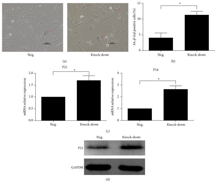 Senescence analysis of transfected BM-MSCs. (a) Representative SA- β -Gal activity in different groups. Scale bar = 100 μ m. (b) Percentage of SA- β -Gal positive cells was quantified in different groups. Data was presented as mean ± SD. (c) Mean relative values (±SD) of P21 and P16 mRNA expression in different groups. (d) The confirmation of P21 upregulation in knock-down group by western blot analysis.