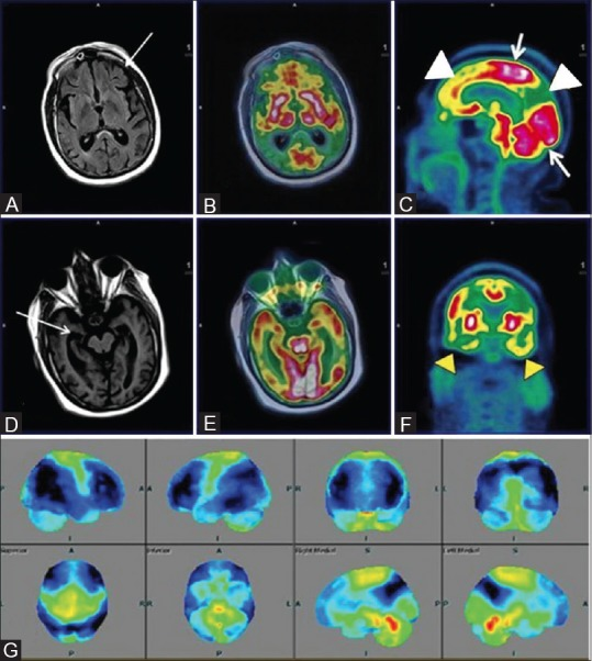 Axial FLAIR (A) Reveals prominent ventricles and sulcal spaces (white arrow)-cerebral atrophy; Axial T1wMPRAGE (D) Reveals hippocampal atrophy; Axial fused PET MRI (B and E) Sagittal (C) and coronal PET (F) Reveal bilateral fronto-temporal and parietal hypometabolism (white arrowhead). Note well preserved glucose metabolism in sensorimotor cortex and occipital lobes (white arrow) on sagittal PET images consistent with established AD. Statistical parametric map surface display (G) Shows marked hypometabolism (blue) in corresponding areas of bilateral cerebral hemispheres